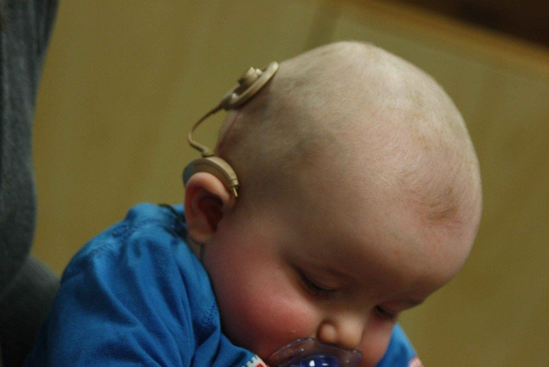 Picture of infant with cochlear implant
